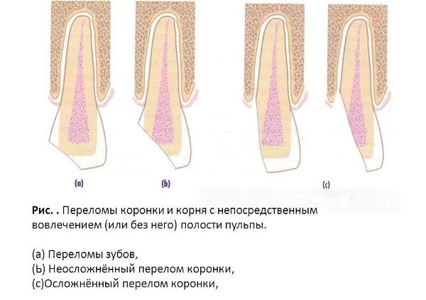 Перелом коронки зуба по мкб 10