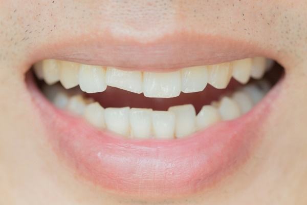 Виды переломов коронки зуба