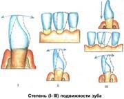 Степени подвижности зубов при пародонтите