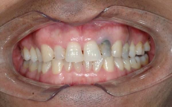 Причины потемнение эмали зубов около десен