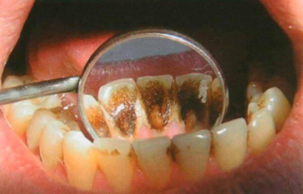 Потемнение зубов может определяться двумя доминантными генами