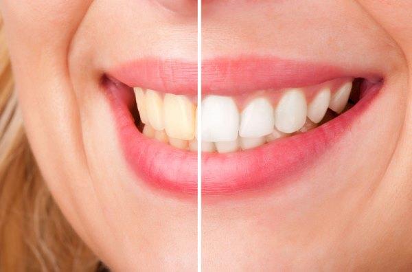 Чем опасно потемнение зуба