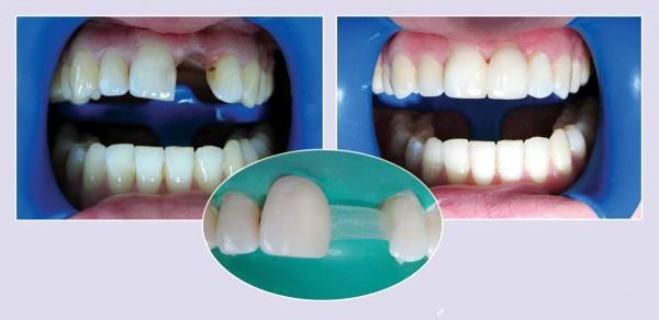 Восстановление зуба риббонд