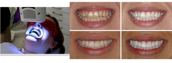 Системы химического отбеливания зубов