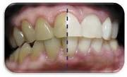 Как лечить тетрациклиновые зубы