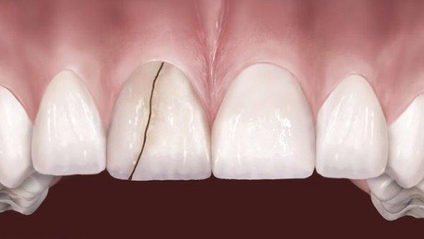 Почему треснул зуб и что должен сразу делать пациент