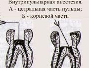 Внутрипульпарная анестезия в стоматологии