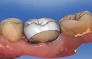 Восстановление разрушенной коронки зуба