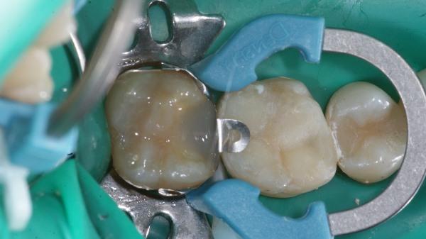 Восстановление зуба пломбой с нарушением контактного пункта