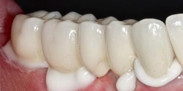 Септопак в стоматологии инструкция