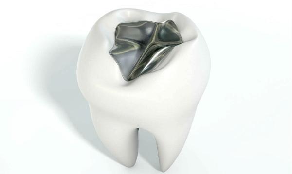 Пломбы из амальгамы в стоматологии