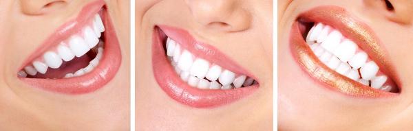 Основные направления в дизайне улыбки