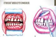 Особенности проведения гингивотомии