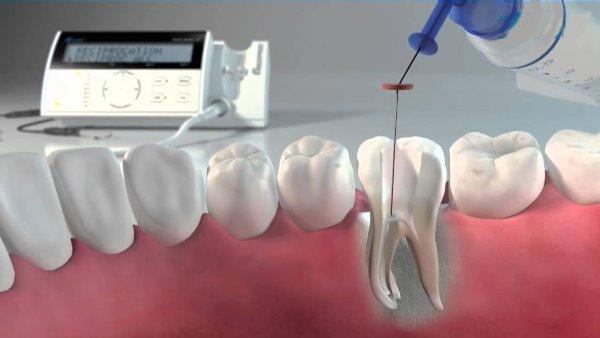 Основы ирригации корневых каналов зуба