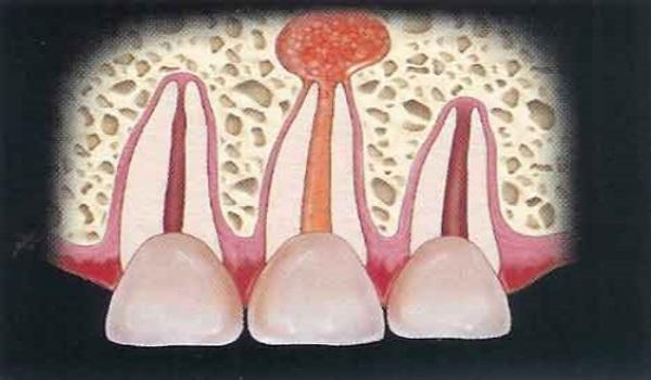 Диагностика и лечение апикального периодонтита