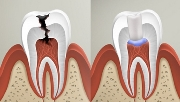 Лечение острого пульпита зуба
