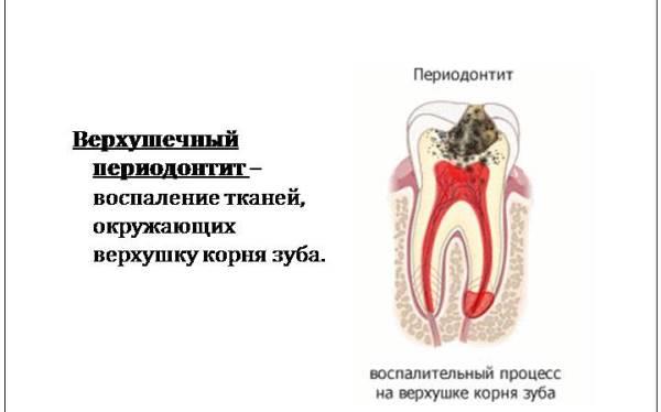 Острый апикальный периодонтит зуба мкб 10