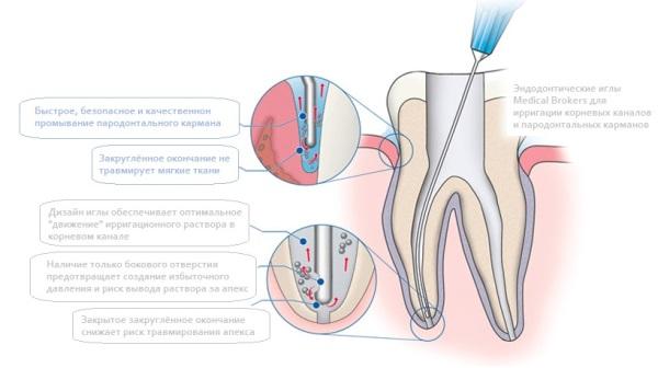 Протокол ирригации корневых каналов