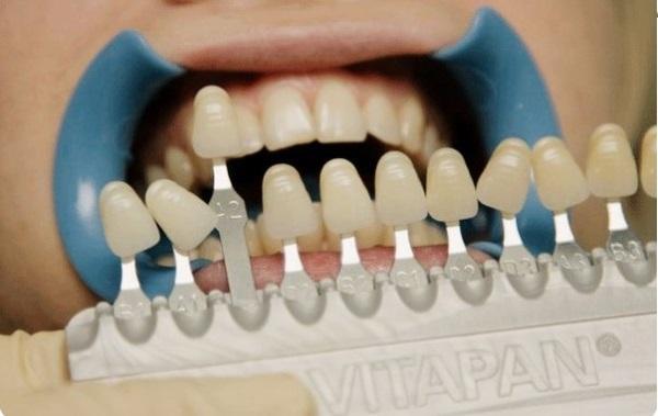Шкала вита цветов зубов самый популярный оттенок