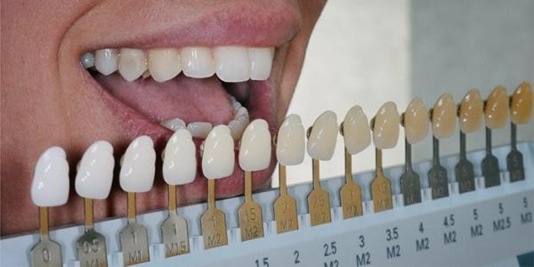 Как правильно определить цвет зубов по шкале Вита