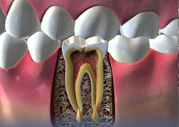 Лечение травм зубов у взрослых и детей