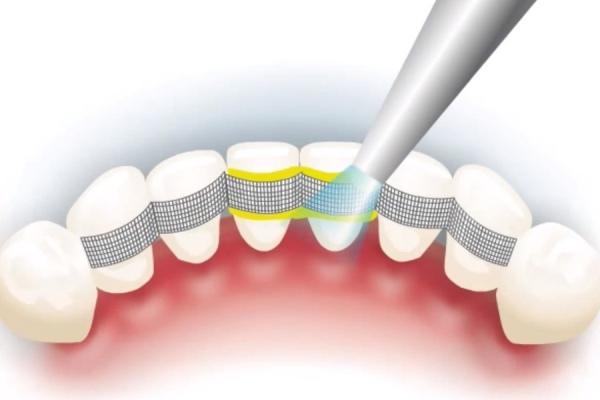 Стекло Гласспан лента 4 для шинирования в стоматологии