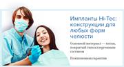 Hi Tec имплантаты официальный сайт