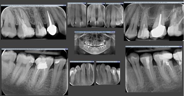 Рентген зуба с помощью прицельного снимка