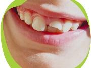 Лечение травмы зубов