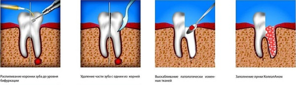 Этапы гемисекции