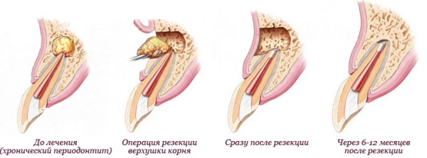 Зубосохраняющие операции в стоматологии