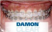 Брекет система Damon Clear