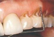 Клиновидный дефект зубов лечение цена
