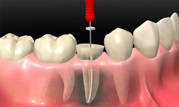 Состав и свойства пасты Форфенан в стоматологии