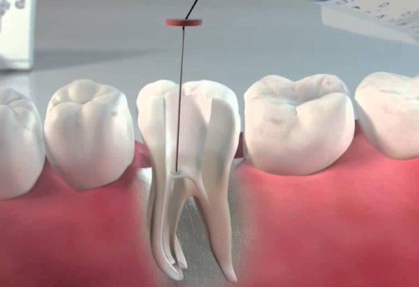 Форфенан в стоматологии