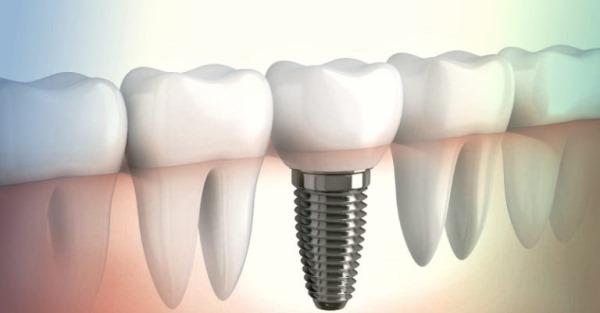 Признаки отторжения зубного импланта