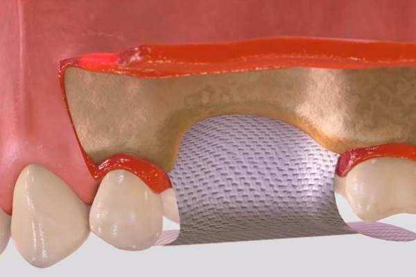 Направленная костная регенерация со взятием аутокости