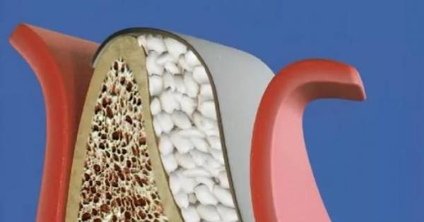 Материалы для направленной костной регенерации