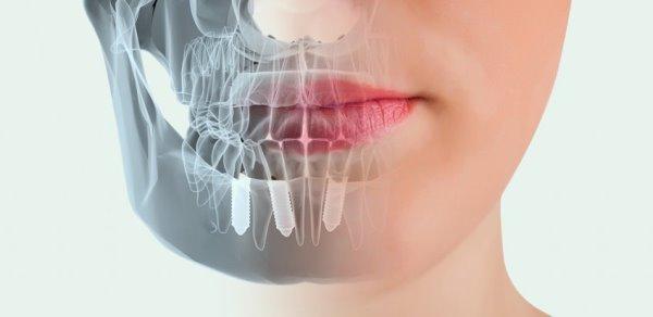 Как исключить отторжение зубного импланта