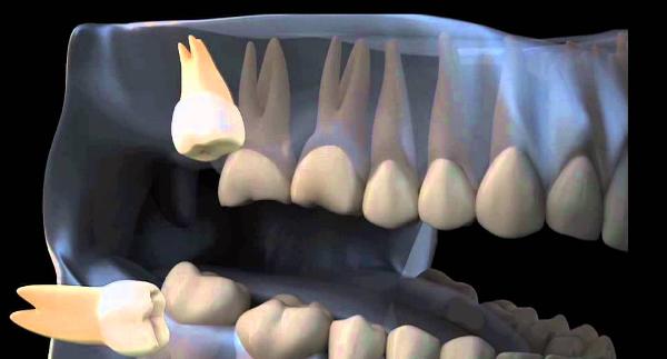 Патология зубов мудрости фото