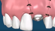 Пластика десны после имплантации фото