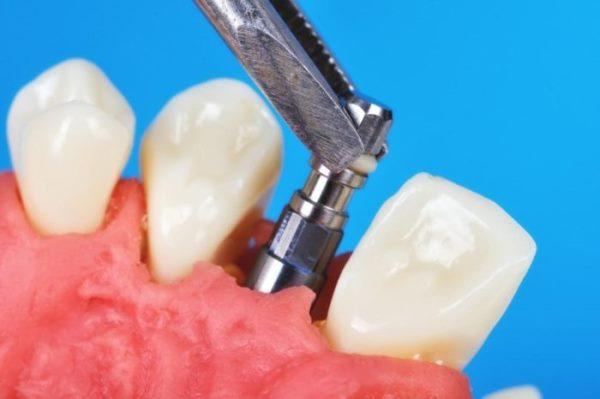 Как происходит отторжение зубного импланта