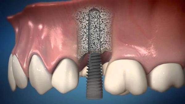 Советы на период приживления зубных имплантов