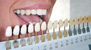 Цвет зубов по шкале Вита