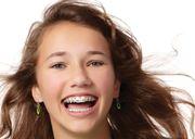 Виды брекетов American Orthodontics