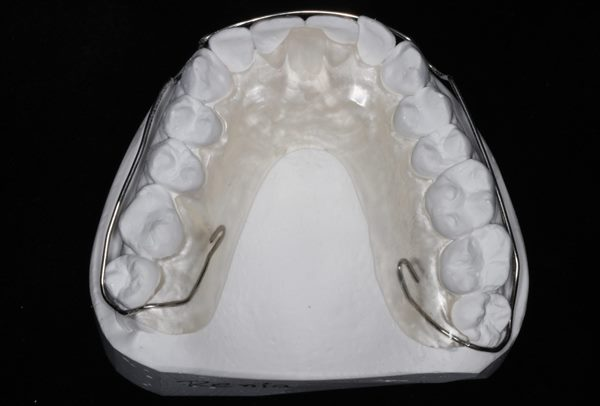 отбеливание зубов фото до после