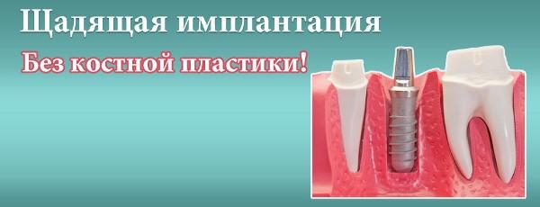 Протокол имплантации без костной пластики