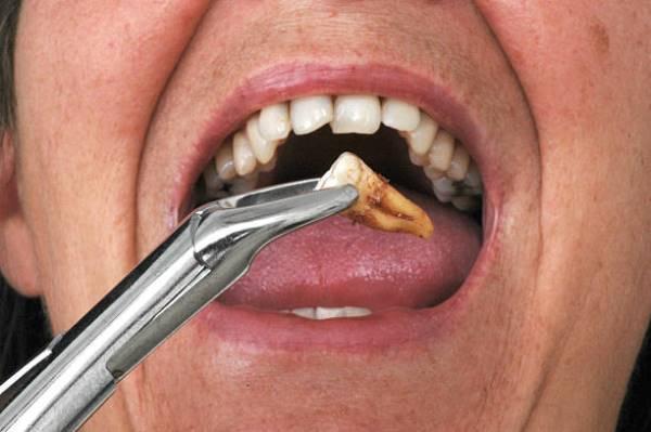 Нужно ли удалять зубы мудрости в процессе установки брекетов