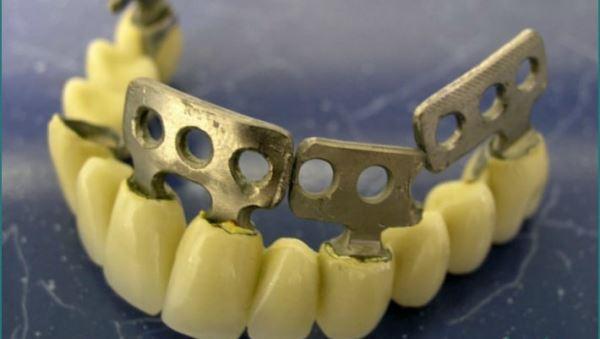 Пластинчатые импланты