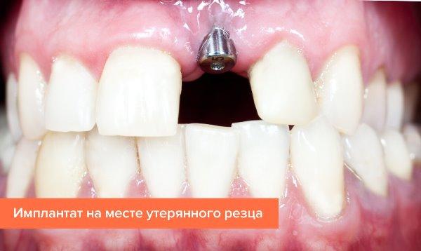 Установка импланта